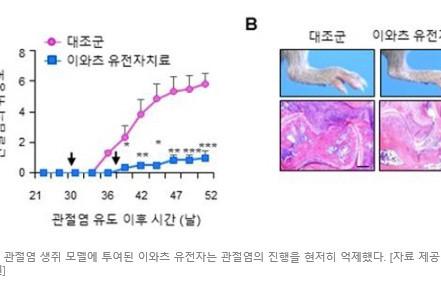 국내 연구진, 류마티스 관절염 완치 가능성 찾아 [2020.05.30]