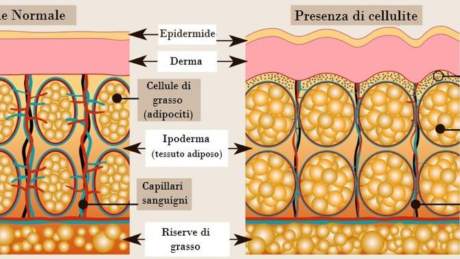 Sai davvero cos'è la Cellulite?