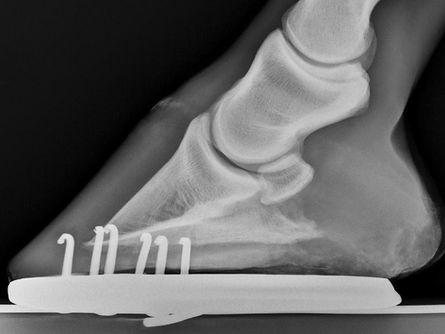 1. zdravá střelková kost.jpg