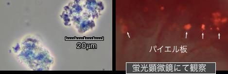 未処理乳酸菌