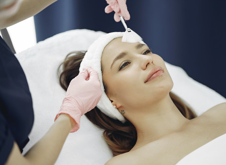 Chemical peels and sun exposure