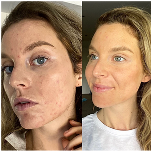 Healing my PCOS acne by PCOS to wellness