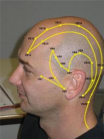 acupuncteur Muret