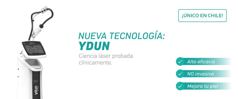Ydun en Chile