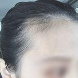 ac_scalp_before.JPG