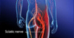 Sciatica_Is_Not_A_Diagnosis_What_Is_Scia