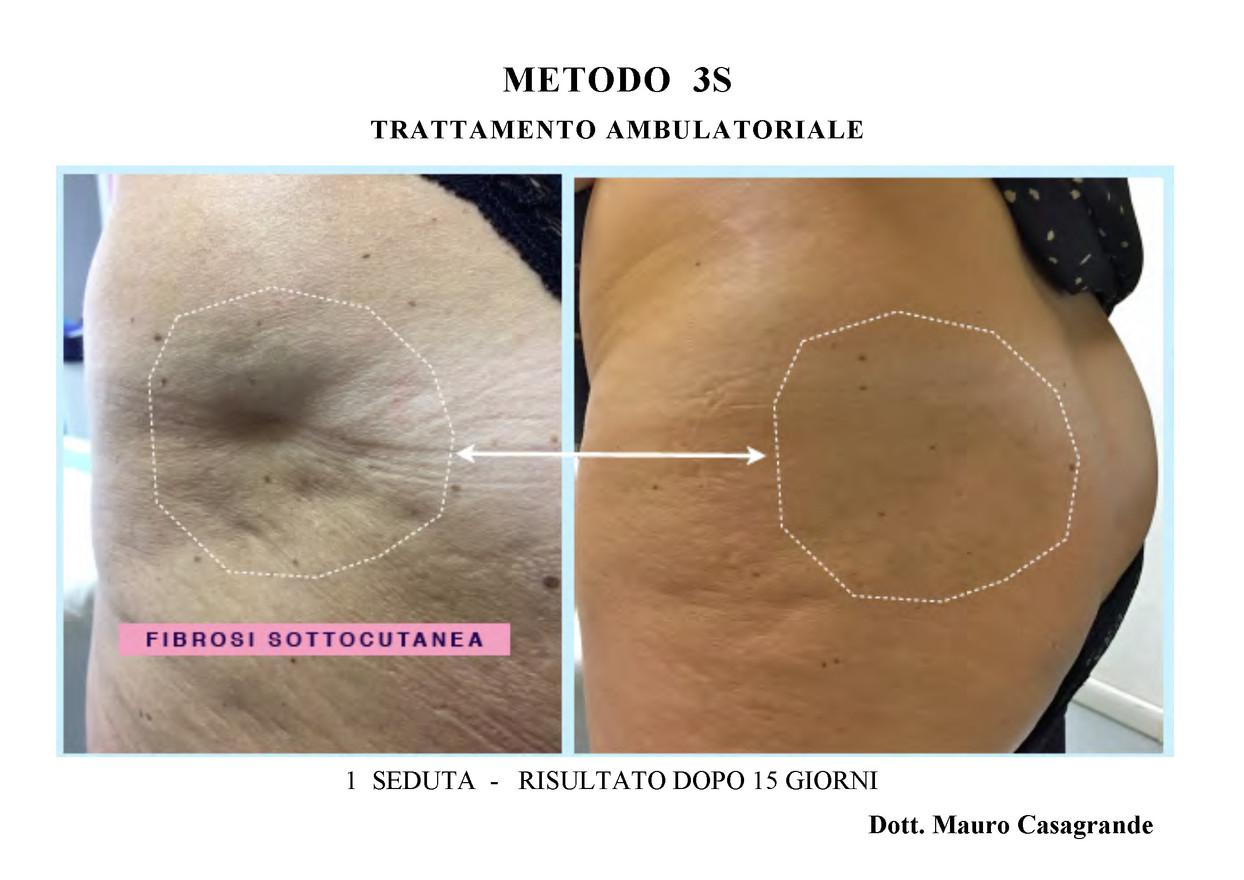 METODO 3S