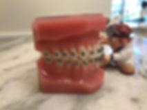 Self Ligating Metal Braces - Island Way Orthodontics - Orthodontist Jupiter & Palm Beach Gardens