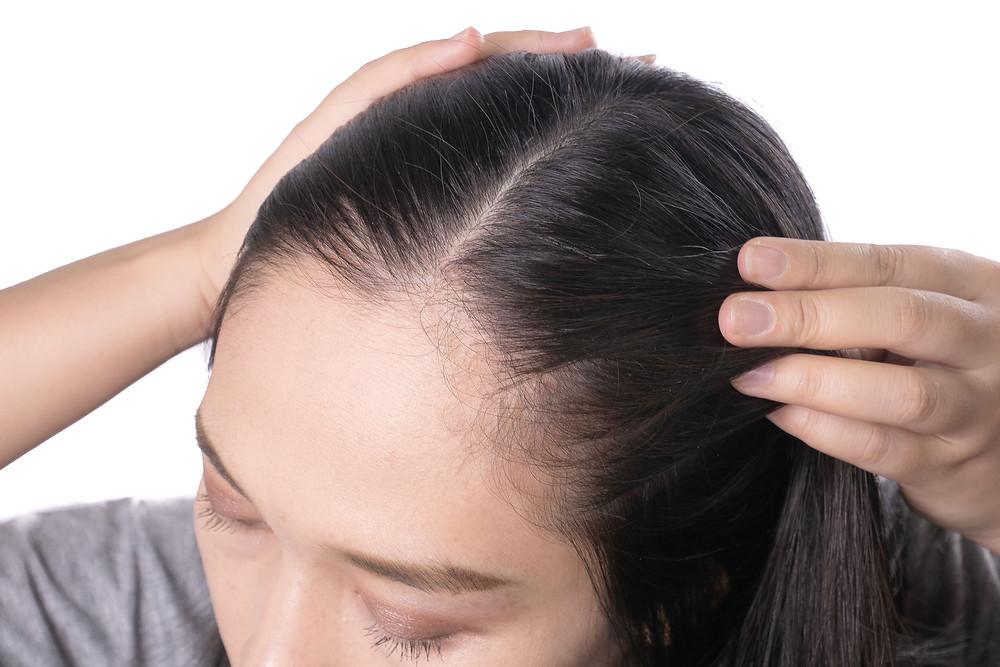 休止期掉落的頭髮,就屬於「正常掉落」
