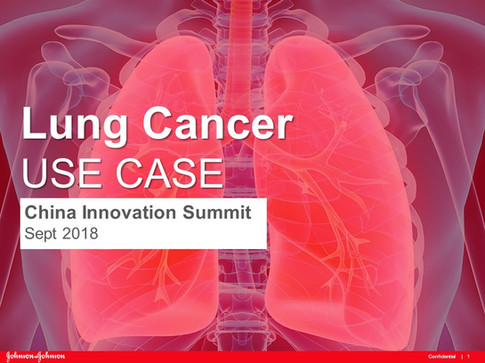 Lung Cancer Use Case China Innovation Summit