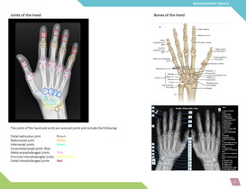 Uncovering Hand Radiograph