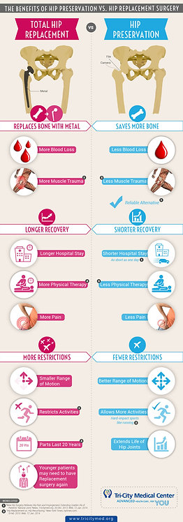 The Benefits of Hip Preservations Vs.Hip Replacement Surgery Infographic