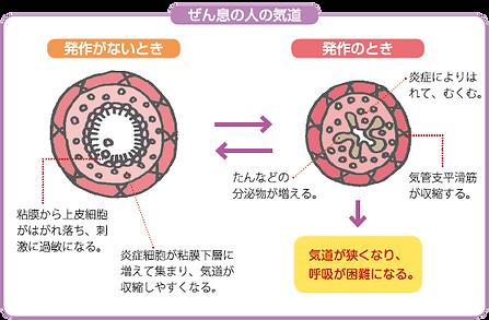 喘息の人の気道の模式図