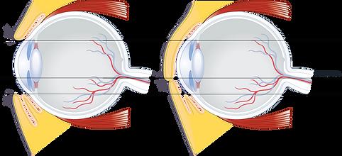 Eye lid blink side scale.png
