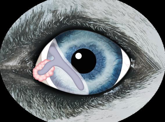 Eye T shape.png