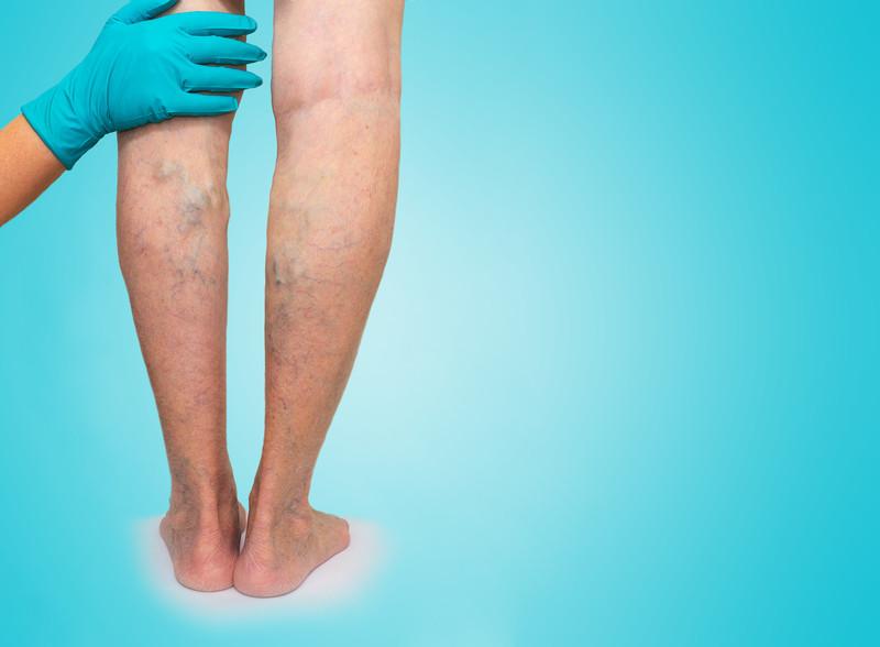 Varizes e má circulação nas pernas
