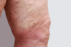 the-varicose-veins-143117526.jpg