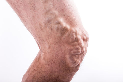 people-with-varicose-veins-of-the-lower-