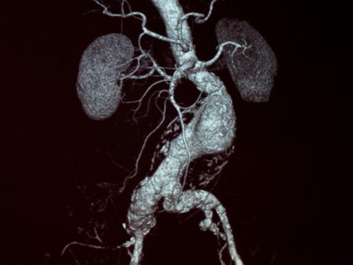Aneurisma da aorta abdominal. O que é?