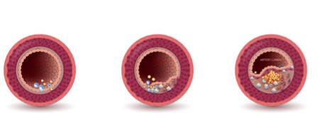 Doença Arterial Periférica: o que é? Quais são os sintomas? Como se pode tratar?