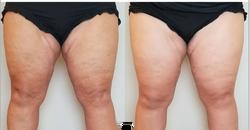 Less Cellulite