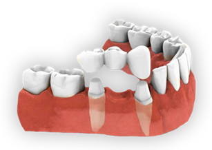 What are dental bridges ? What are benefits of dental bridges ?