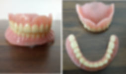 Dentures by your dentist nearby Dr. Pooja Jalan
