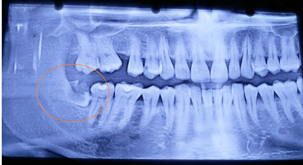 FIGURE 2. Pre-operative digital OPG demonstrating caries affecting impacted tooth 48