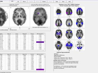 Syntermed's NeuroQ™ 3.7 for SPECT Brain Imaging Announced at RSNA