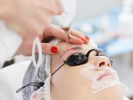 Tudo o que você precisa saber sobre Despigmentação a Laser!