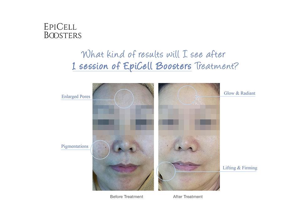 Epicell-marketing-pg1-.jpg