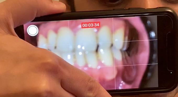 Smartphone-Based Periodontal Disease Detection