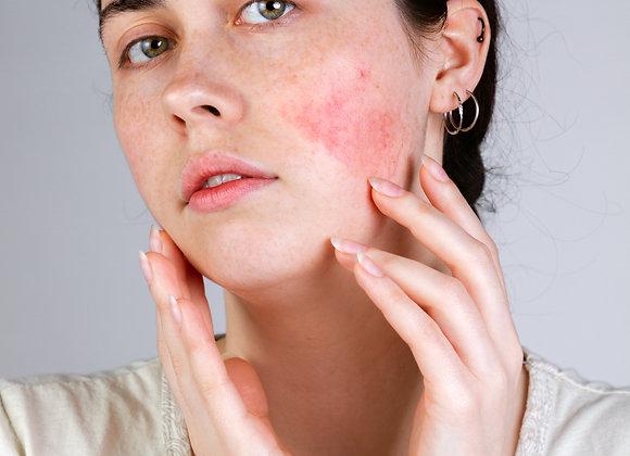 Rosacea/Sensitive Skin Kit