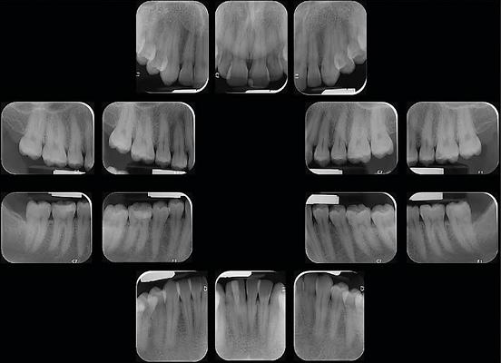 צילום סטטוס לשיניים ברשת דנט אור