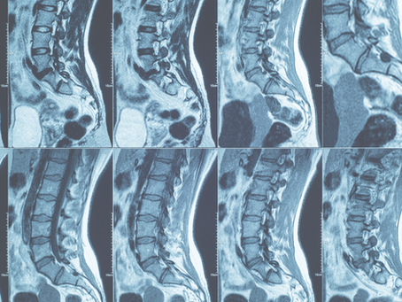 The Pain Truth: MRIs & Low Back Pain