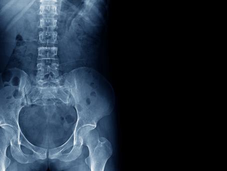 Symphysis Pubis Dysfunction (Pelvic Girdle Pain)