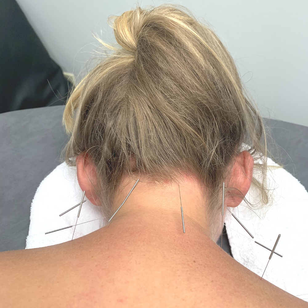 Trigger Point Dry Needling in the neck and shoulders