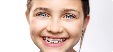Ortodoncia-movible-2.jpg
