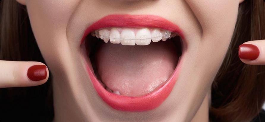 Ortodoncia-Zafiro.png