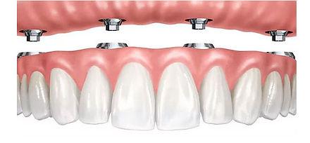 ortodoncia-mixta.jpg