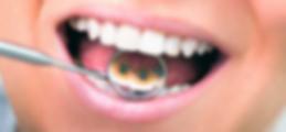 Ortodoncia-Lingual.png