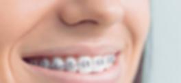 Ortodoncia-Fija.png