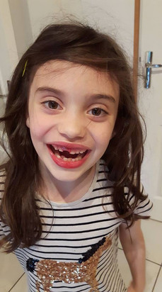 The Tooth That Wouldn't Budge