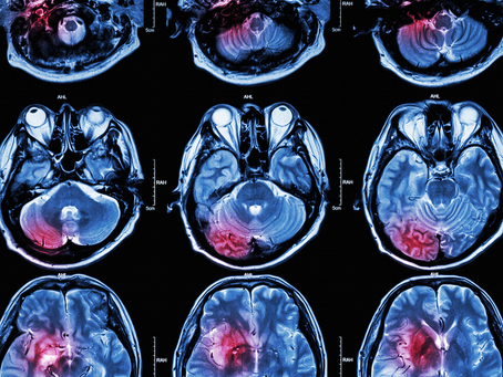 How to Detect Traumatic Brain Injury?