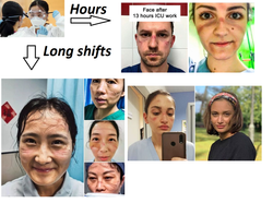 goggles hurt face coronovirus long shift