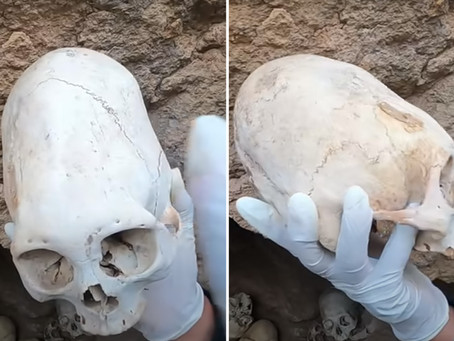 The 5 Most Bizarre Elongated Skulls Ever Discovered