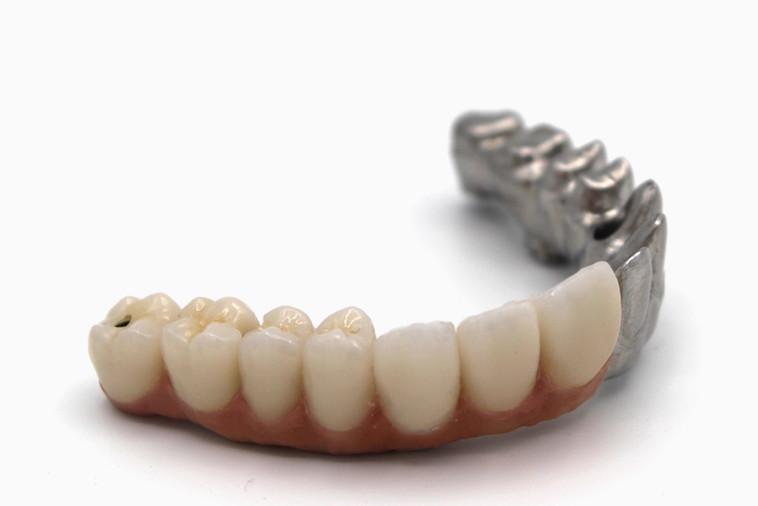 Titanium Screw Retained Hybrid Denture