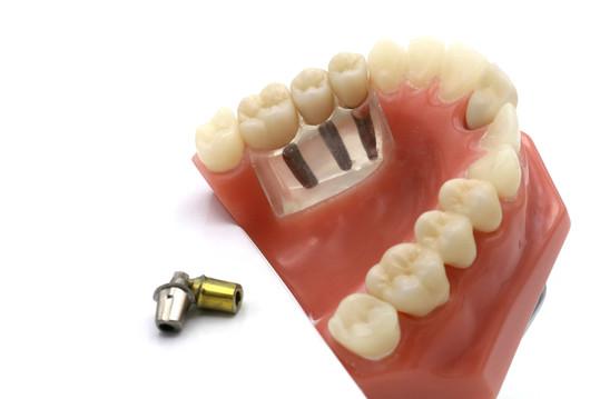 Milling Center Custom Implants Abutments