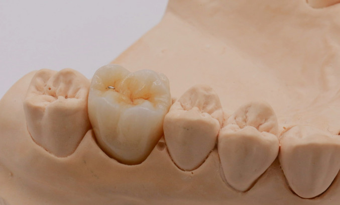 Multilayer Zirconia Crown