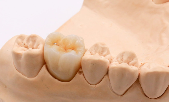 Multilayer Zirconia Crown on Dental Stone Model